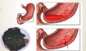 Анемия при язве желудка