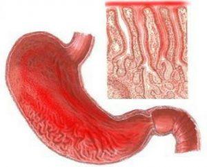 Лечение расторопшей при язве желудка