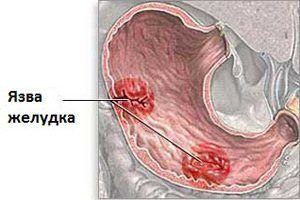 Антибиотики уколы при язве желудка