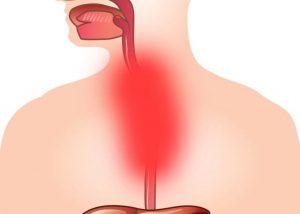 Препараты для лечения диспепсии желудка