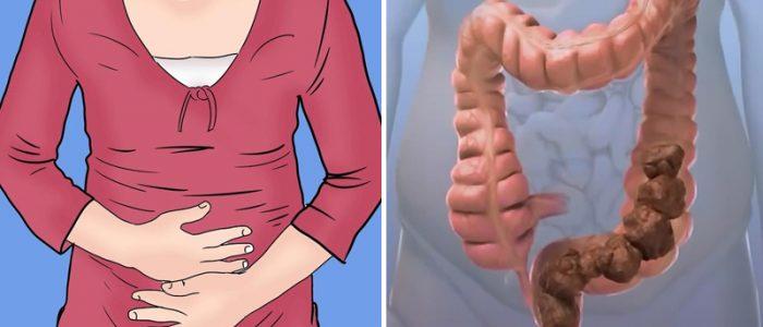 Может ли болеть желудок из за запора thumbnail