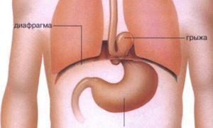 Болит кардиальный отдел желудка