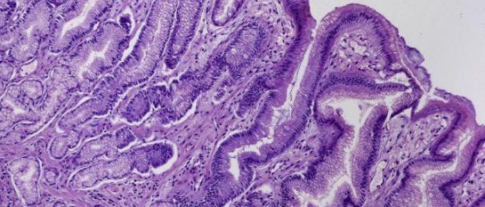 Метаплазия желудка лечение