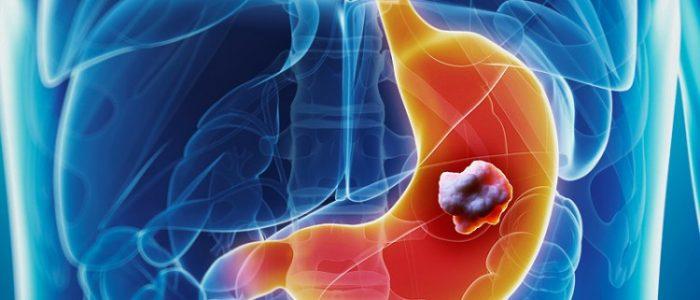 Недифференцированный рак желудка прогнозы thumbnail