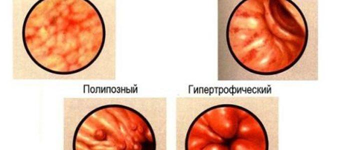 Атрофический гастрит при похудении