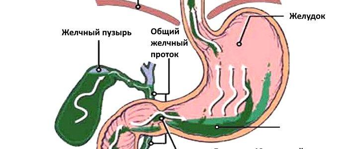 Почему поступает желчь в желудок